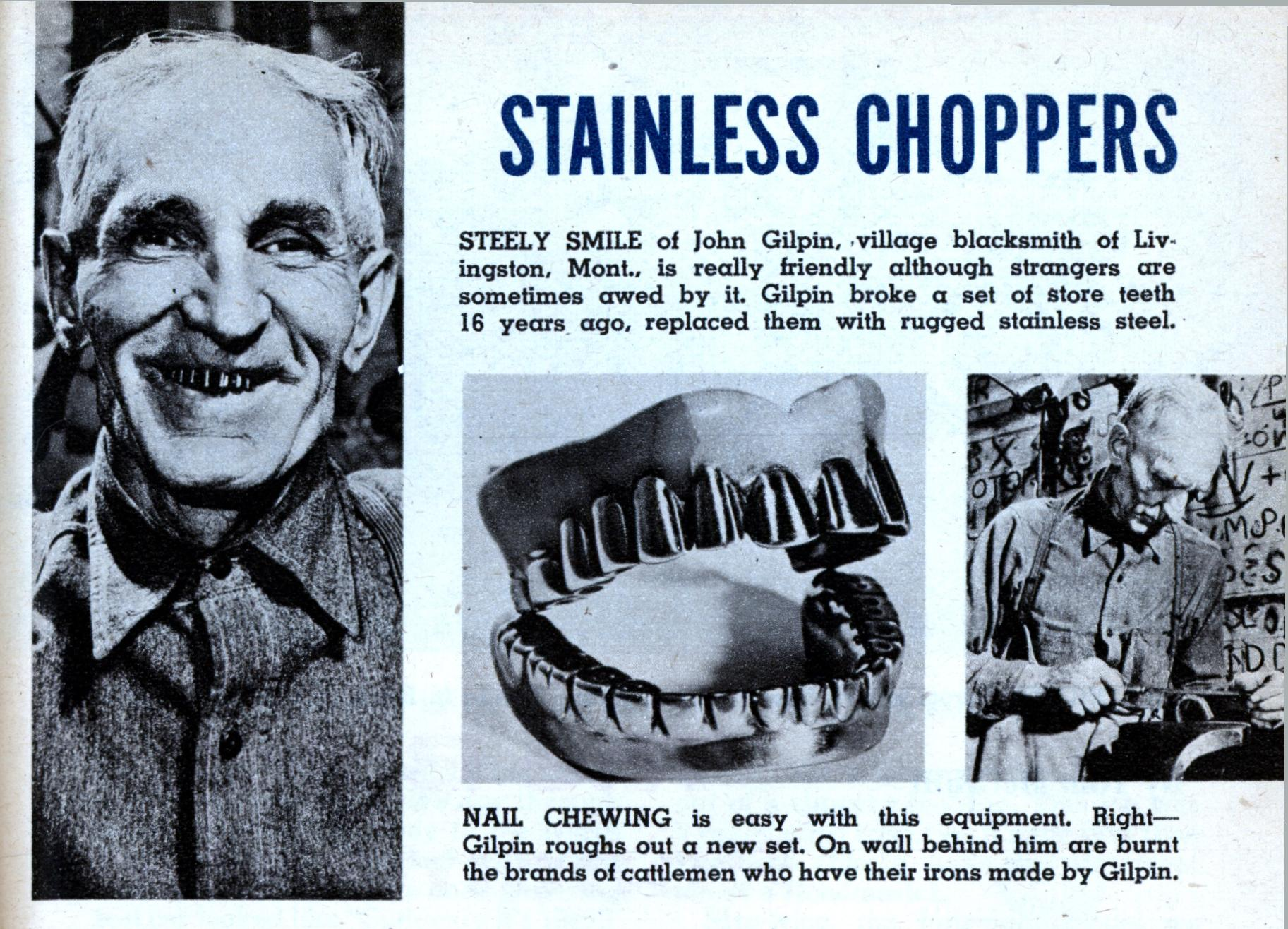 Wow, this is actually the second guy I've seen with homemade stainless steel dentures. Here is another from 1937. I wonder how common this was.