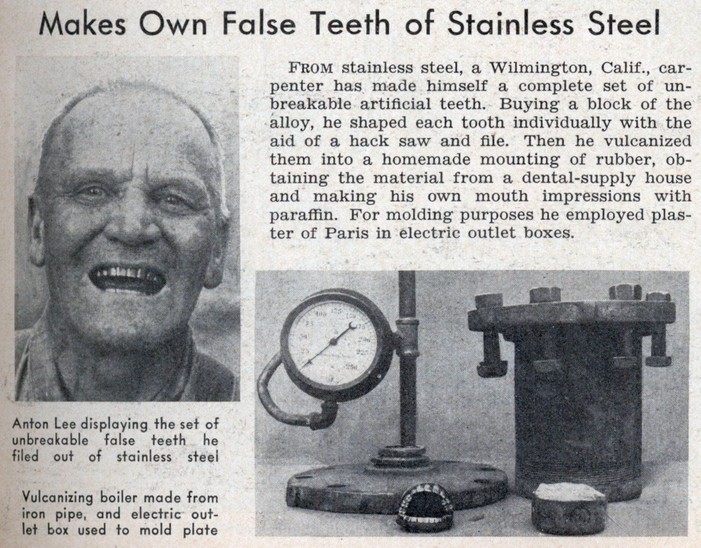 Makes Own False Teeth of Stainless Steel | Modern Mechanix